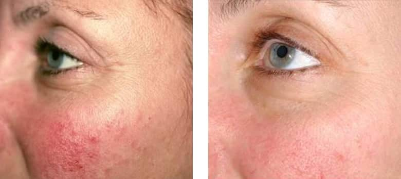 Skin-Redness-Before-After-3