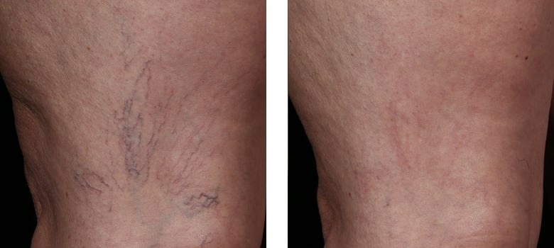 Spider-Veins-Before-After-1