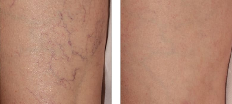 Spider-Veins-Before-After-2