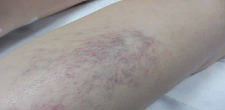 What Sort Of Veins Do You Have?