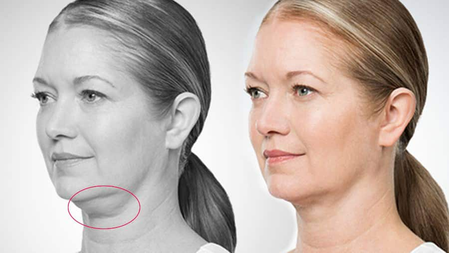 A New Groundbreaking Procedure For Treating Fat Chins