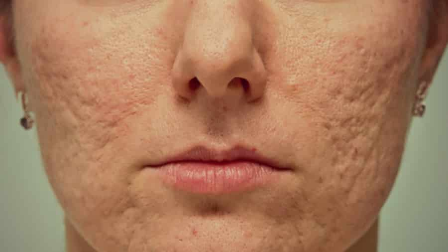 Acne Scarring – Facts and Statistics