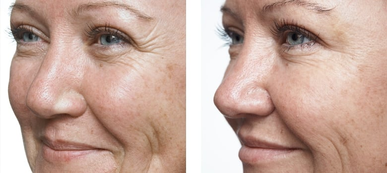 Anti-Wrinkle-Treatments-Before-After-1