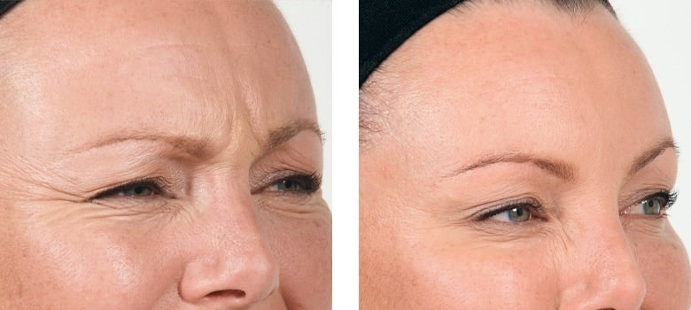 Anti-Wrinkle-Treatments-Before-After-2