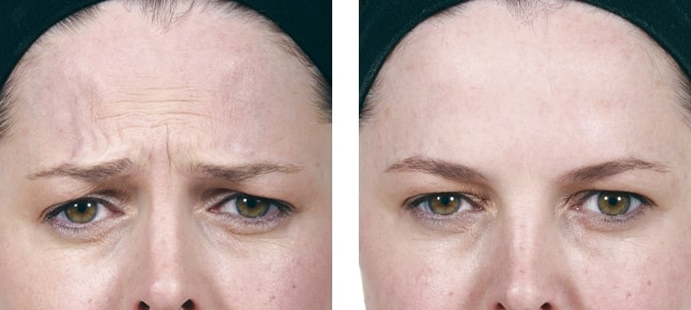 Anti-Wrinkle-Treatments-Before-After-3