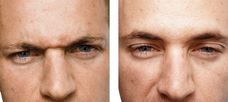 Anti-Wrinkle-Treatments-Before-After-4