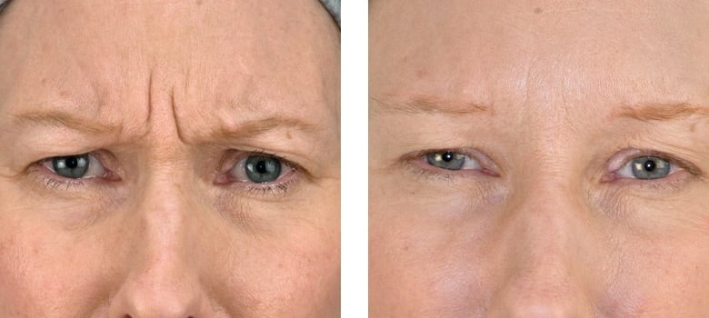 Anti-Wrinkle-Treatments-Before-After-5