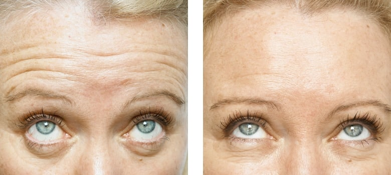 Anti-Wrinkle-Treatments-Before-After-6