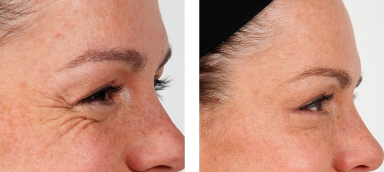 Anti-Wrinkle-Treatments-Before-After-7