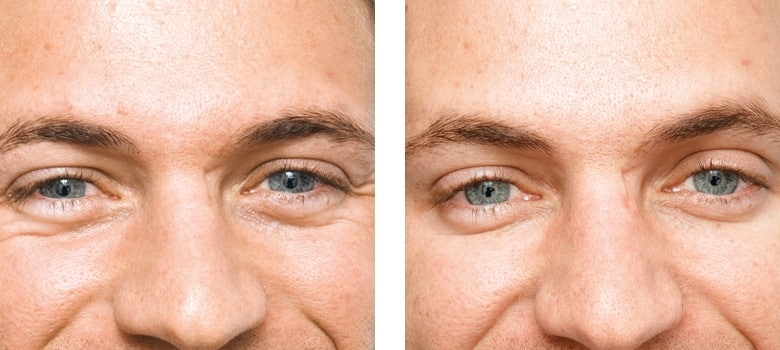 Anti-Wrinkle-Treatments-Before-After-8