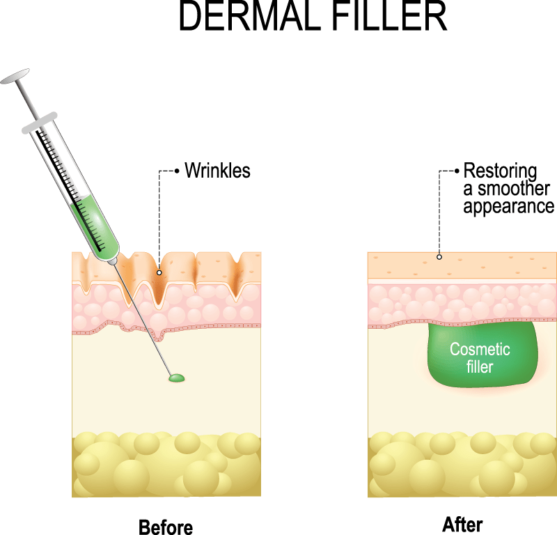Dermal Fillers: About The Condition