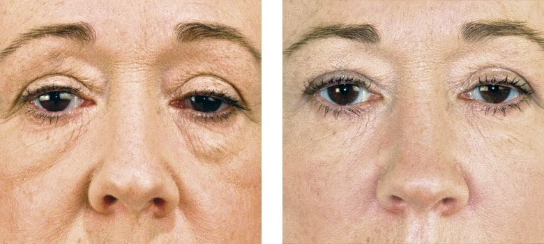 Dermal-Fillers-Before-After-2