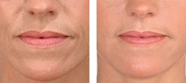 Dermal-Fillers-Before-After-3