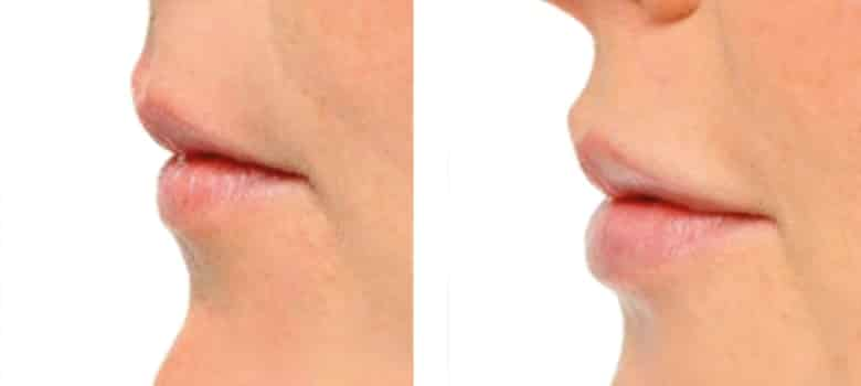 Dermal-Fillers-Before-After-4