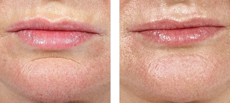Dermal-Fillers-Before-After-5