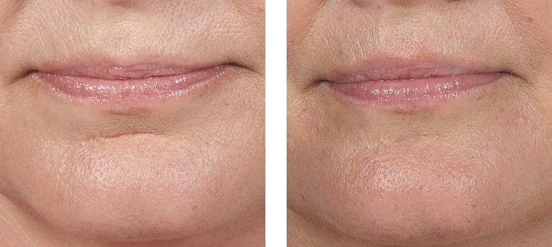 Dermal-Fillers-Before-After-6