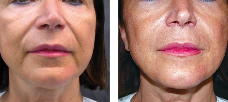 Dermal-Fillers-Before-After-7