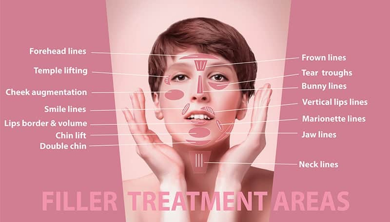 Dermal Fillers: Our Approach