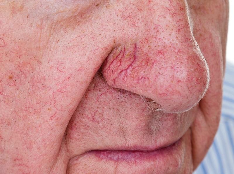 Facial-Redness-Men-Our-Approach