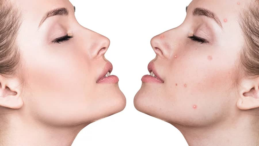 Laser Acne Therapy – Facts