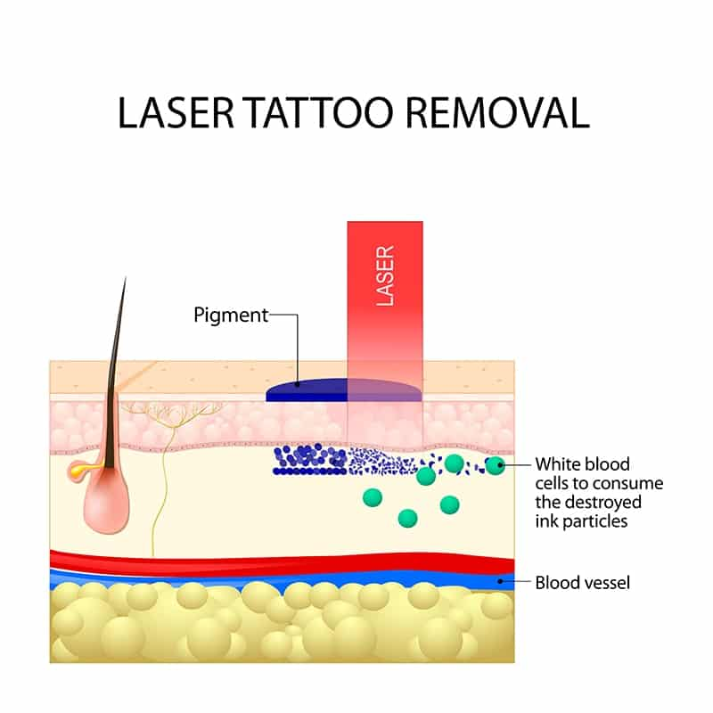 Laser Tattoo Removal: About The Condition