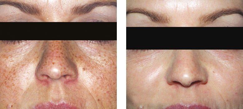 Photorejuvenation-Before-After-1
