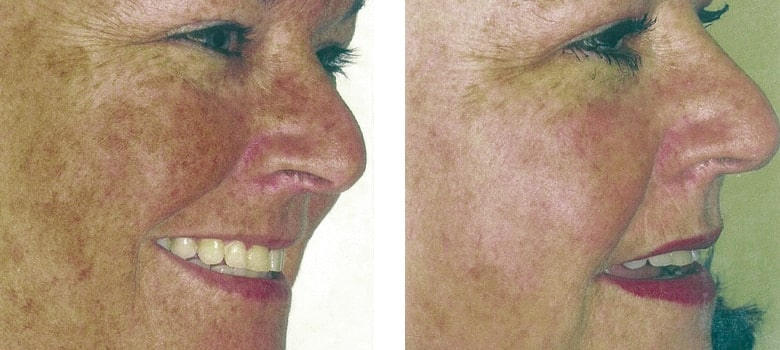 Photorejuvenation-Before-After-2