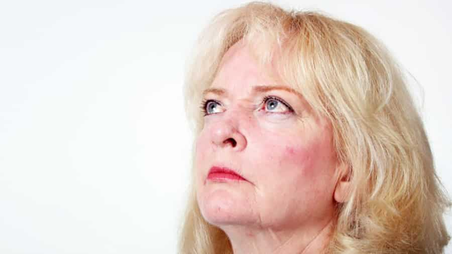 Rosacea & The Effects