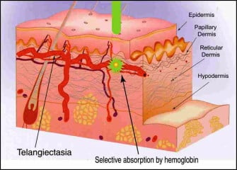 Vascular Lasers: Our Approach