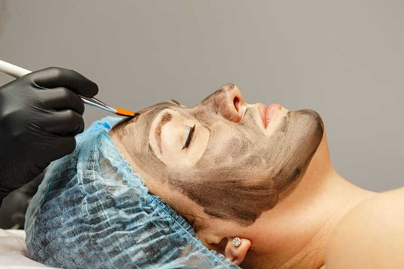 Special Carbon Facial Offer