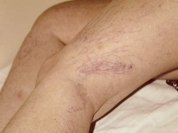 Spider-Veins-About-Condition