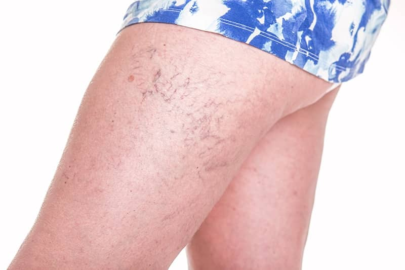 Spider-Veins-Our-Approach