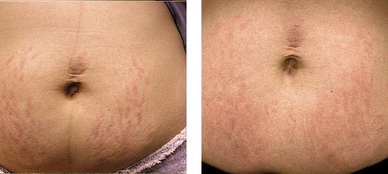 Stretchmarks-Before-After-2