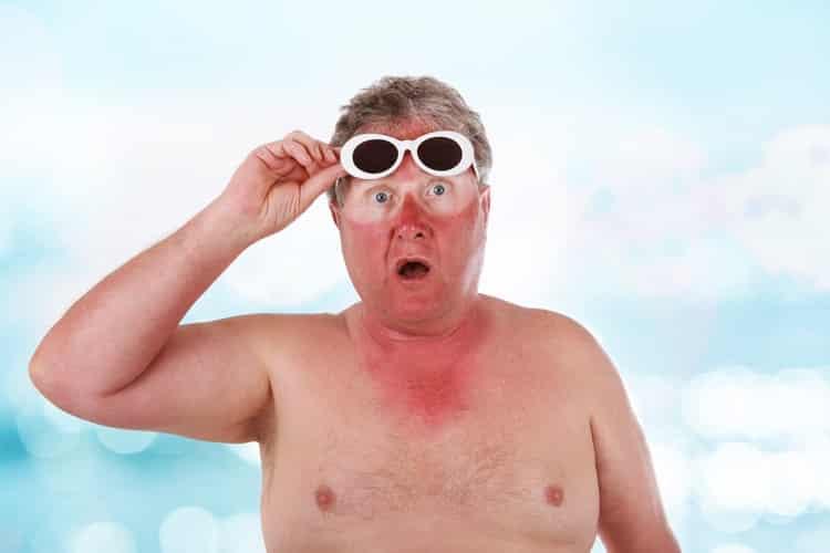 Sun Damage - Men