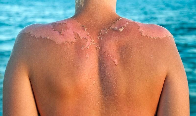 Sun-Damaged-Skin-2