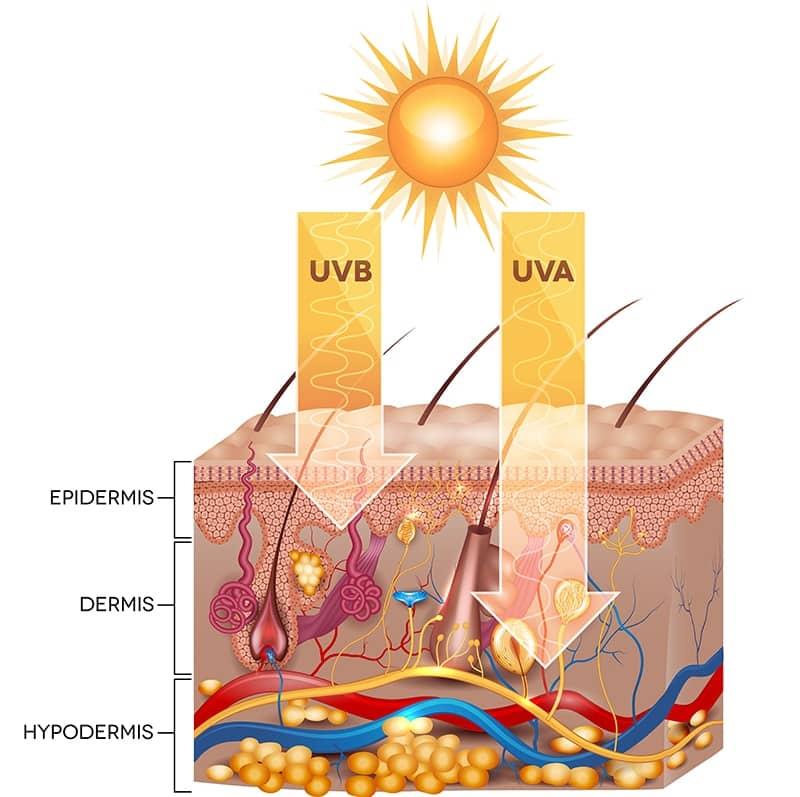 Sun-Damaged-Skin-Diagram