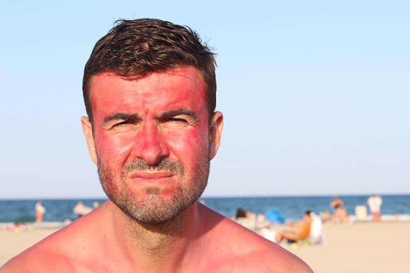 Sun-Damaged-Skin-Men-About-The-Condition