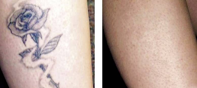 Tattoo-Removal-Before-After-1
