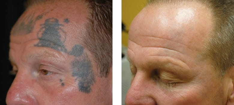Tattoo-Removal-Before-After-4