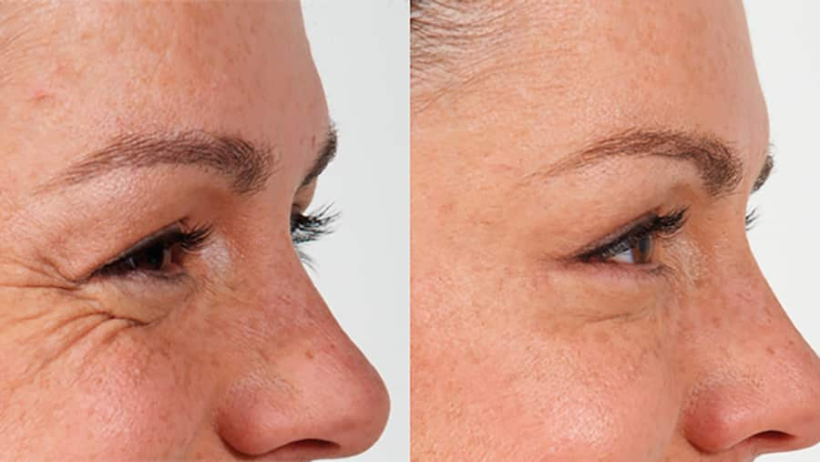 Top 5 things about wrinkle injections