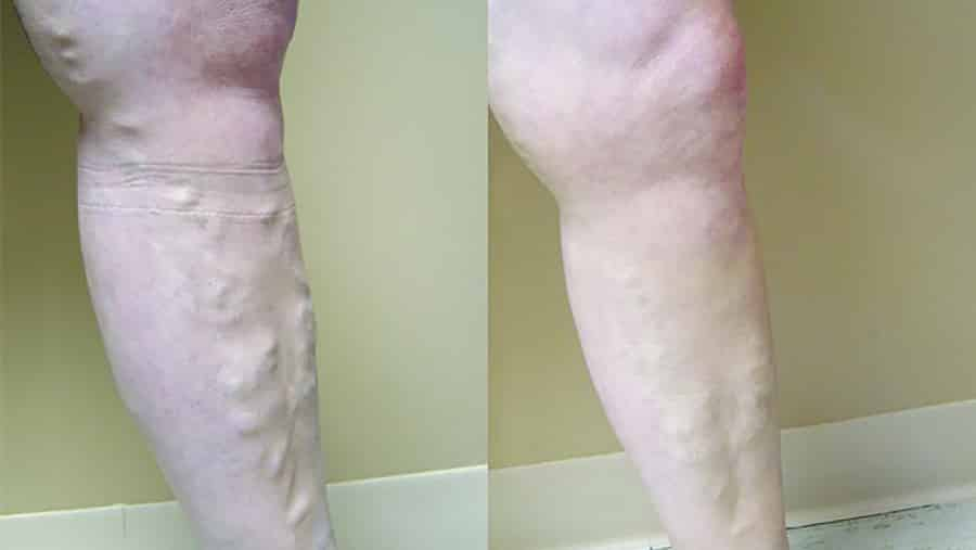 Top Five Things About Leg Veins