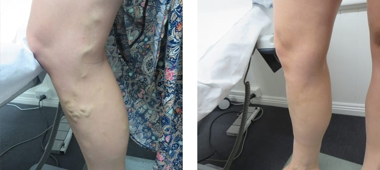 Varicose-Veins-Before-After-1
