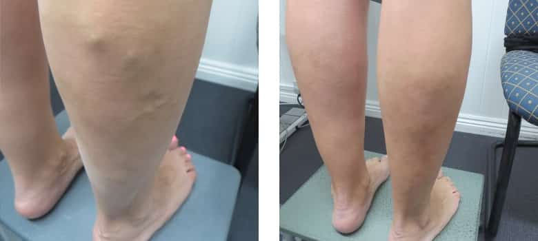 Varicose-Veins-Before-After-2