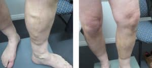 Varicose-Veins-Before-After-3