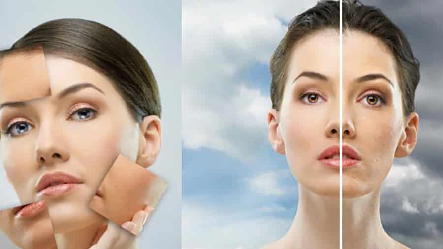 What is Laser Acne Therapy?