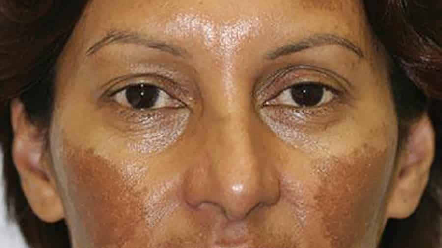 What is Melasma and can it be treated?