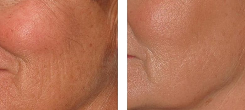 Wrinkles-Before-After-2
