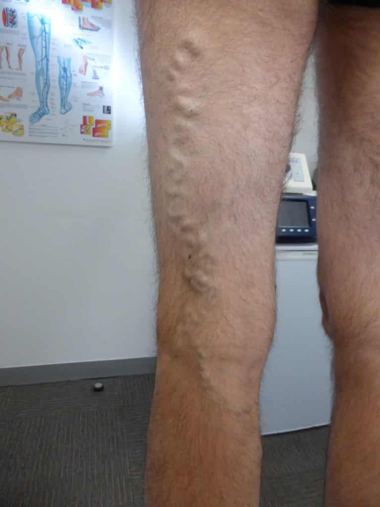 Branch Varicose Vein: Treat Ultrasound Guided Sclerotherapy