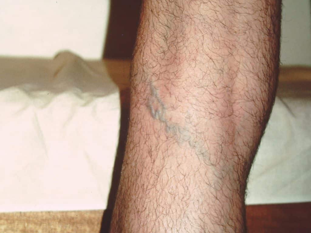 Reticular Veins: Treat by Sclerotherapy