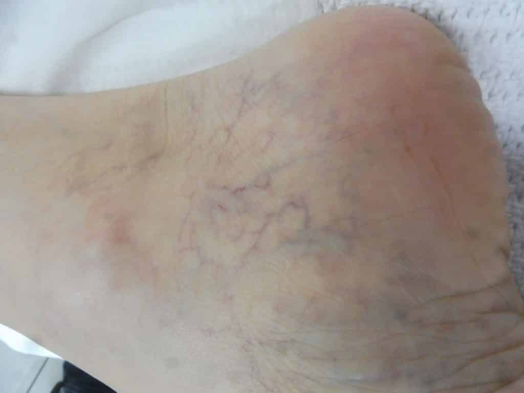 Small Cluster Spider Veins: Treat by Sclerotherapy and Laser